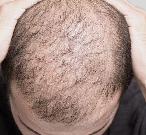 caduta-capelli